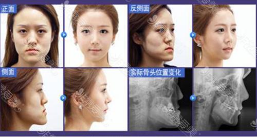 韓國菲斯萊茵雙鄂手術真人、CT前后對比圖