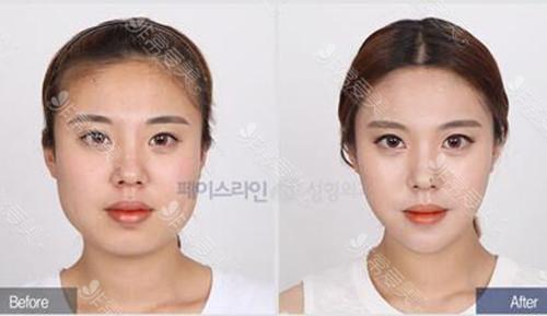 韓國菲斯萊茵vline手術案例