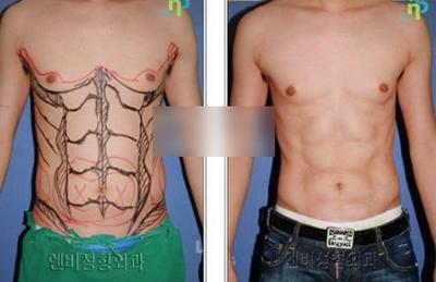 腹肌塑造手术案例