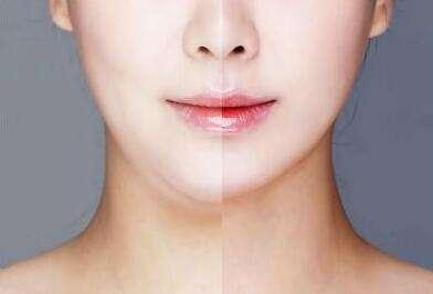 韩国面部吸脂效果怎么样