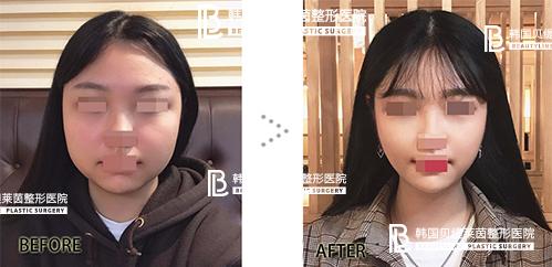 韩国贝缇莱茵整形外科面部吸脂效果好吗