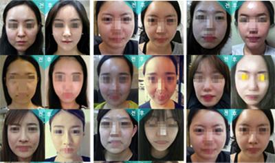 韩国贝缇莱茵整形外科面部吸脂案例
