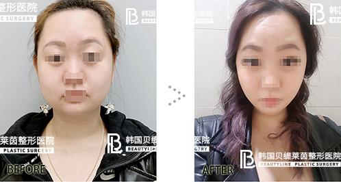 韩国贝缇莱茵整形外科面部吸脂效果怎么样