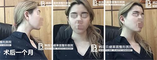 韩国贝缇莱茵整形外科面部吸脂效果靠谱吗