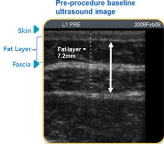 韩国劳波儿整形外科面部吸脂会用专属仪器测量