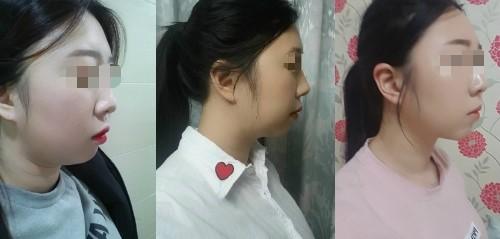 韩国劳波儿整形外科面部吸脂效果怎么样