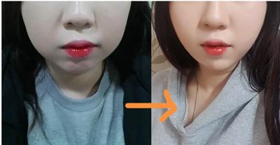 韩国劳波儿整形外科面部吸脂效果好不好
