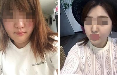 韩国劳波儿整形外科面部吸脂真人案例