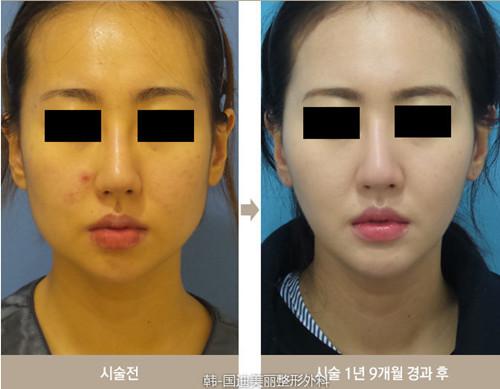 韩国迪美丽整形外科面部吸脂效果好吗