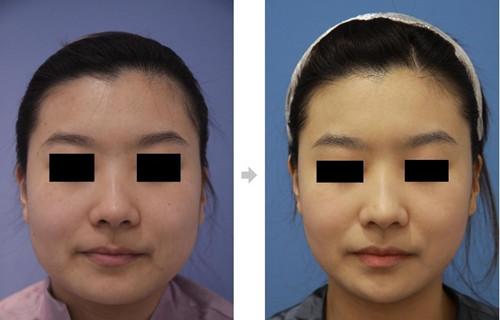 韩国迪美丽整形外科面部吸脂真人案例