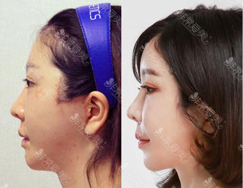 維摩整形外科面部微整前后對比圖