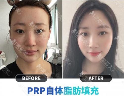韩国妩阿整形面部自体脂肪填充案例