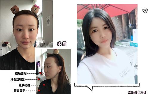 韩国妩阿全脸脂肪填充第5天照片