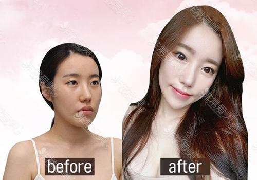 韩国妩阿面部自体脂肪填充案例