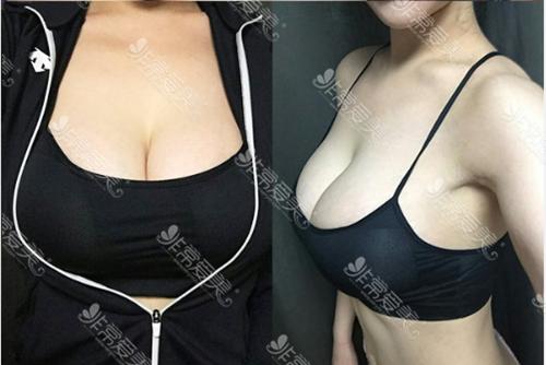 韩国妩阿假体隆胸案例