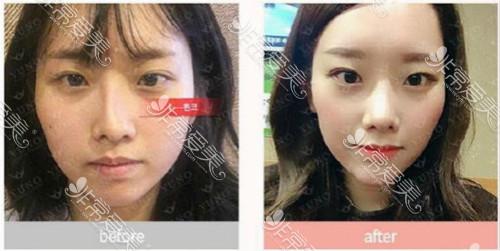 韓國朱諾整形鼻修復手術案例