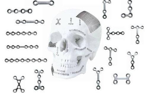 颧骨内推能用钛丝固定吗