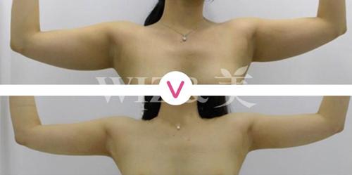 韓國WIZ&美整形外科迷你吸脂有效果嗎