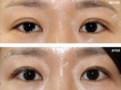 韩国初雪眼部修复案例对比