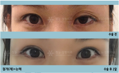 韩国初雪整形外科眼部修复