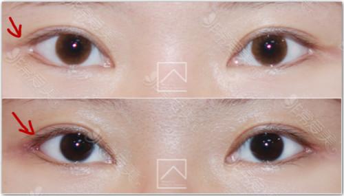 韩国misoline后包眼角修复案例对比