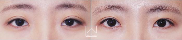 韩国misoline双眼皮修复