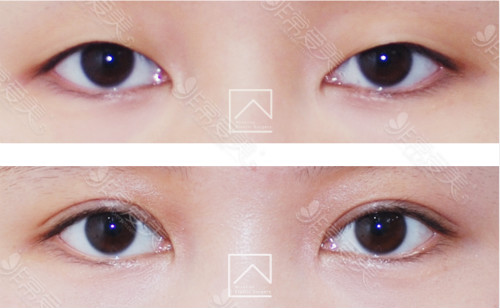 misoline整形外科初眼整形对比