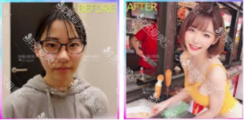 韩国ID医院面部轮廓手术案例