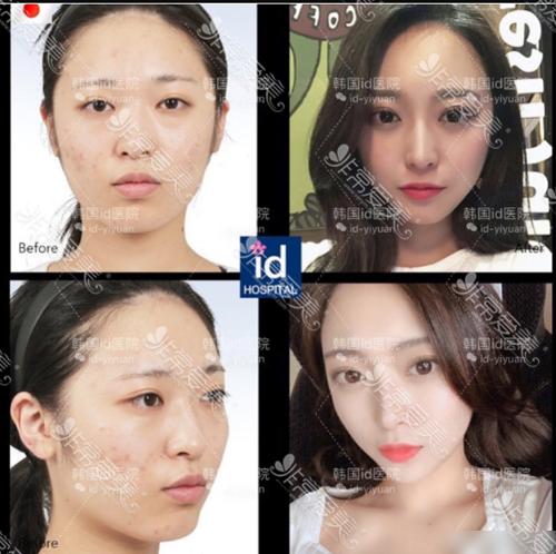 韩国ID医院面部轮廓手术前后图