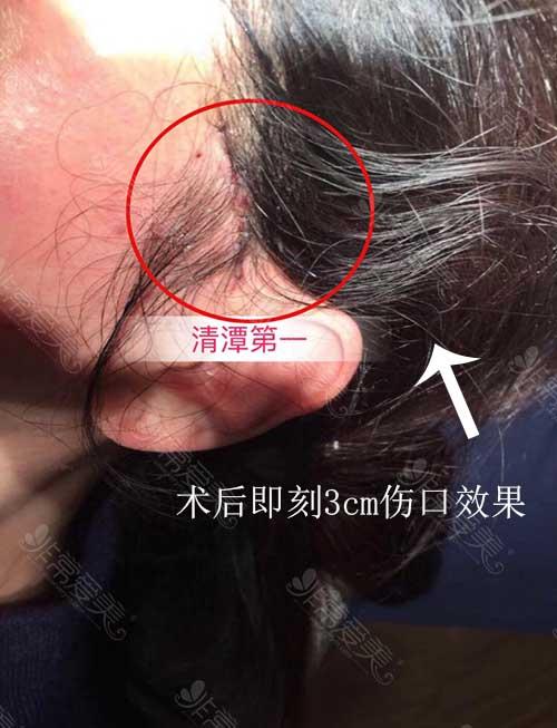 清潭first提升手术术后疤痕示意