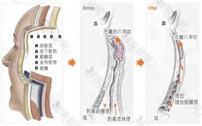 皮肤结构层示意图