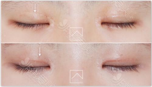 韩国misoline眼部修复对比