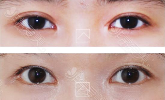 韩国misoline医院双眼皮修复效果