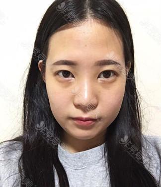 韩国鼻综合整形案例对比