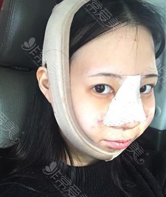 韩国鼻综合手术即刻效果