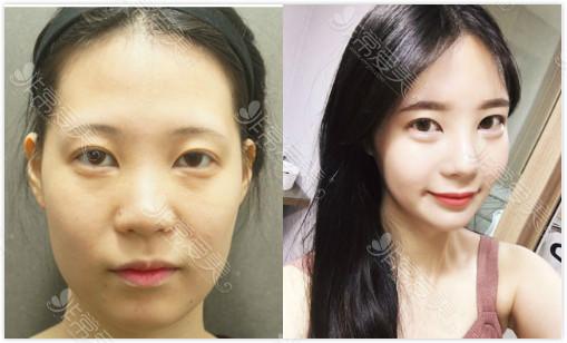 韩国dreamline面吸+鼻综合案例对比