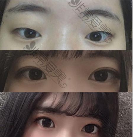 韩国初雪医院双眼皮案例