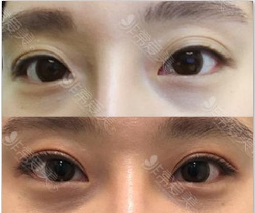 韩国初雪医院双眼皮修复前后图