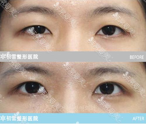 初雪医院眼部修复案例