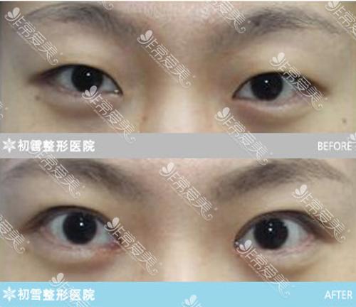 初雪医院眼睛修复案例