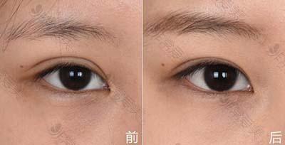 韩国爱丽克医院腊肠眼矫正手术