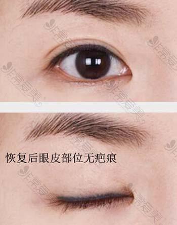 韩国爱丽克医院眼部整形术后照片