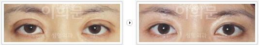 韩国李喜文双眼皮修复整形对比