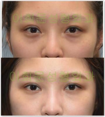 韩国eyemagic整形外科眼修复