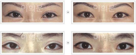 韩国李喜文双眼皮修复案例对比
