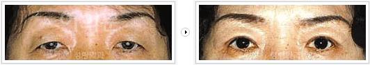 韩国eyemagic上睑下垂矫正