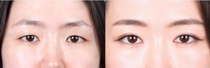 韩国k整形外科眼部综合案例对比