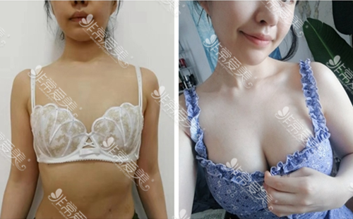 韓國profile整形外科假體隆胸的實際案例圖