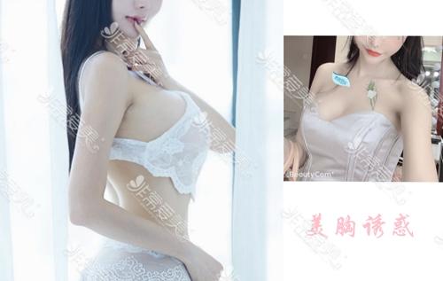 韓國profile整形醫院貓系少女胸真人案例