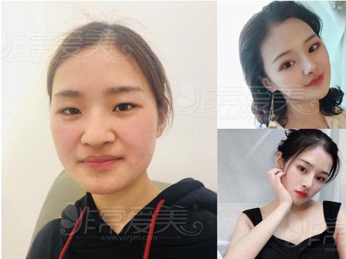 韩国纯真整形外科隆鼻案例